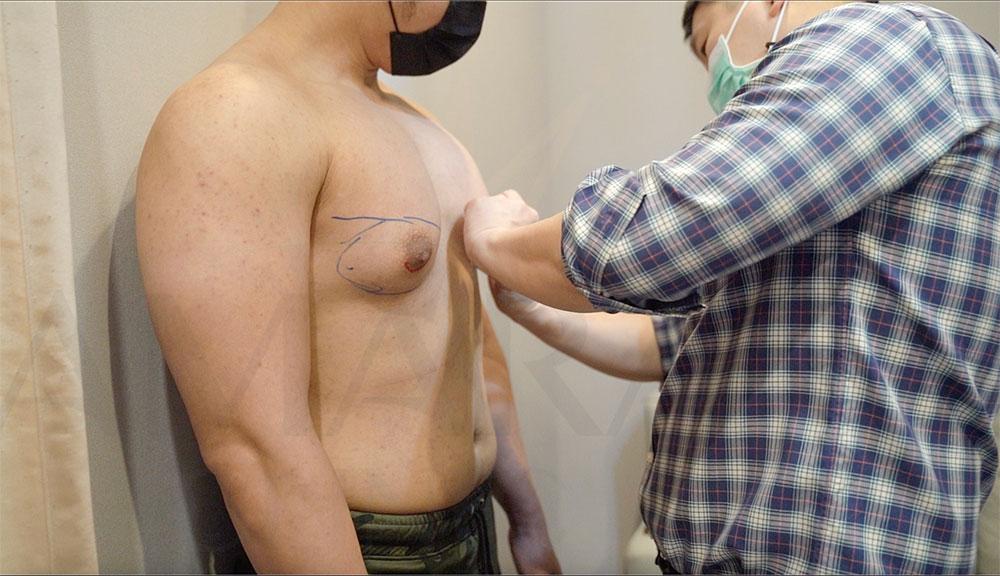 ตำแหน่งผ่าตัดลดขนาดหน้าอก